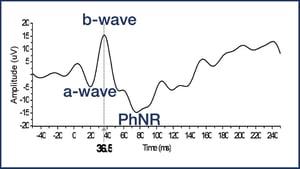 PhNR Waveform