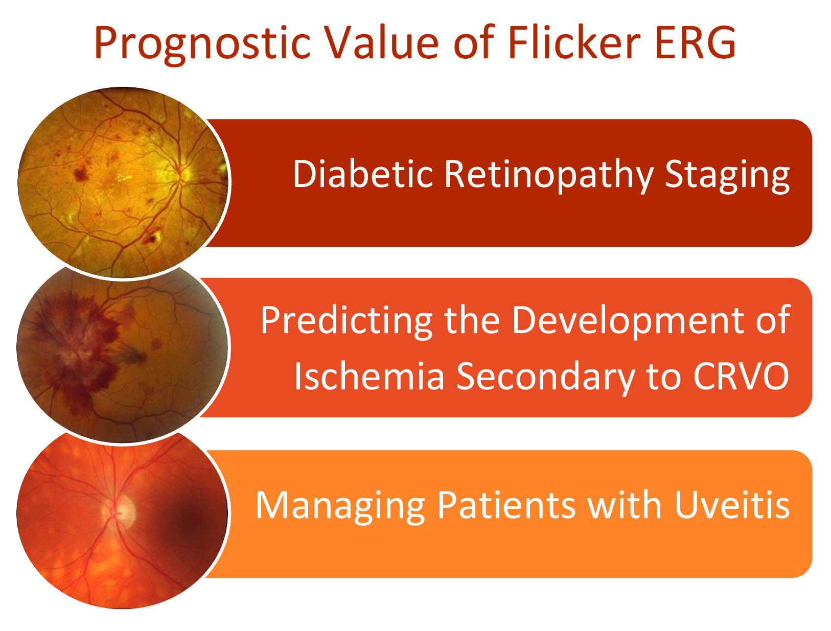 Prognostic Value of Flicker ERG-Diopsys